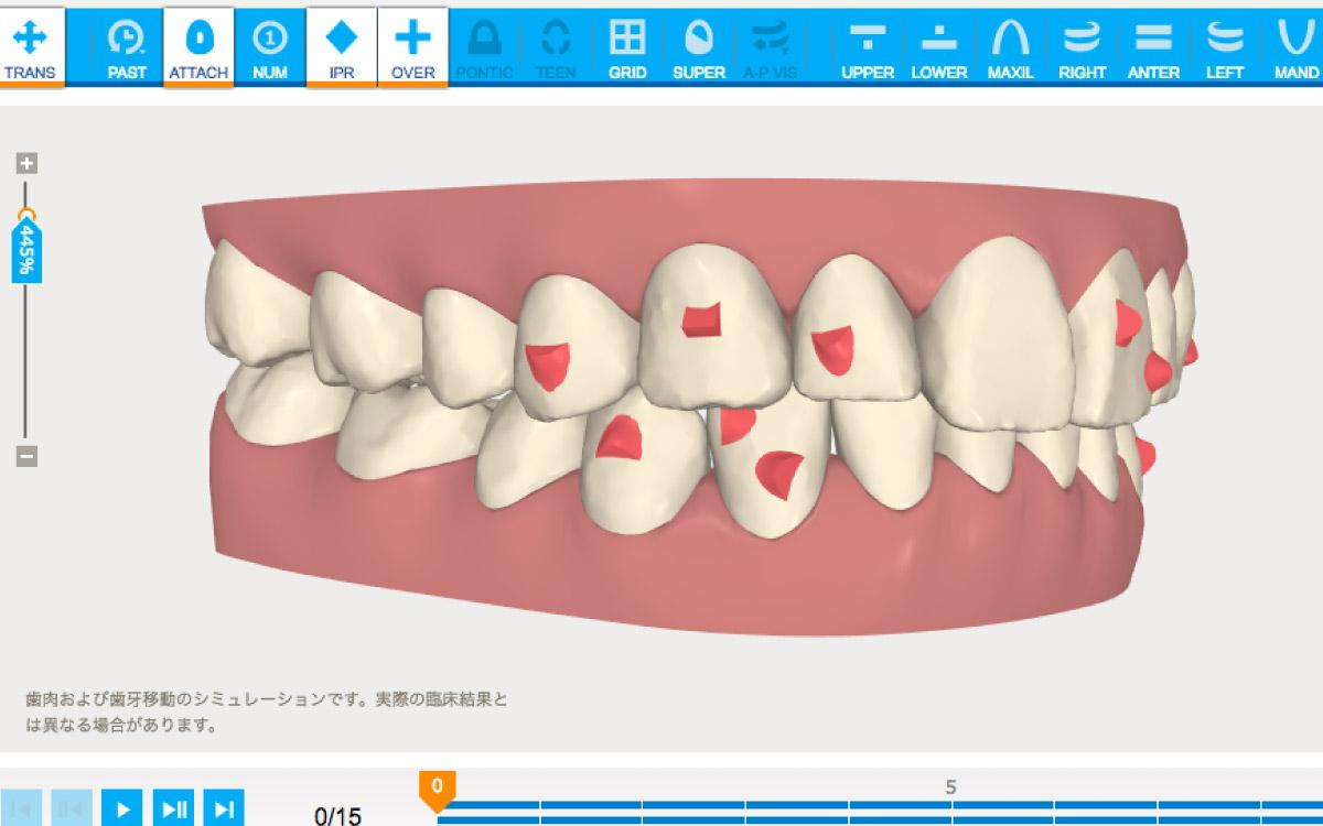画像:歯並びをシミュレーション