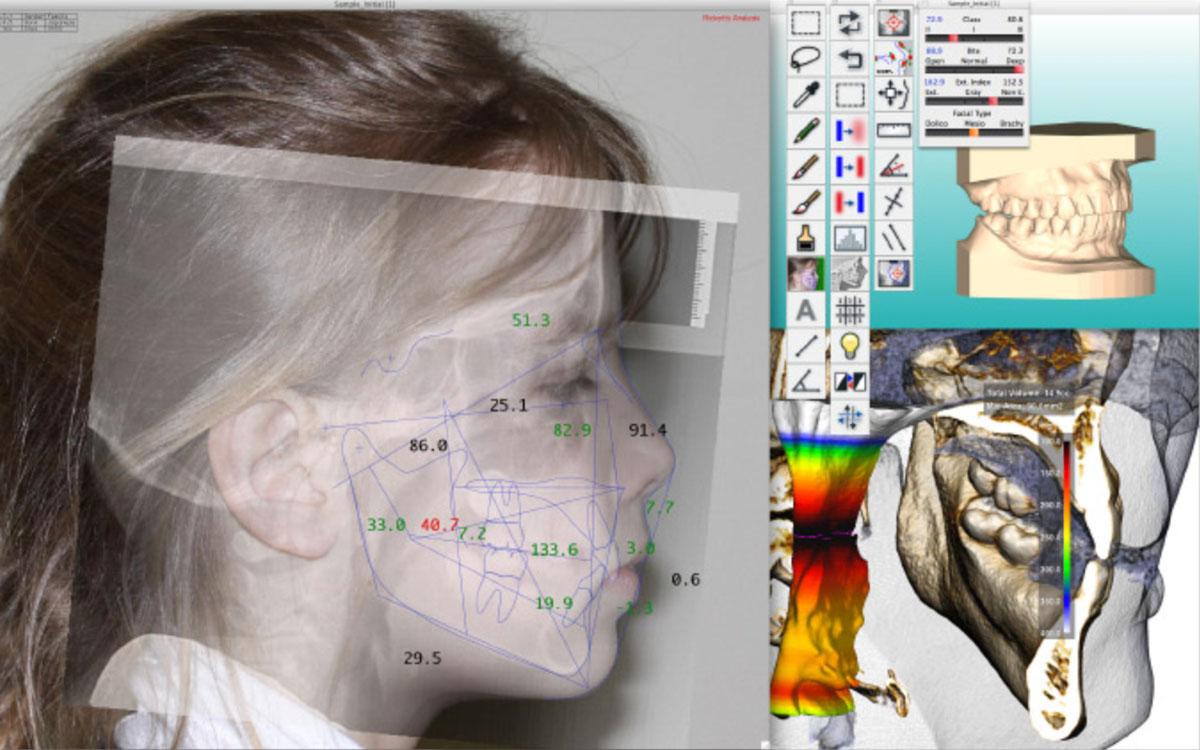 画像:顔貌や口元変化のシミュレーション・セファロ分析ソフト