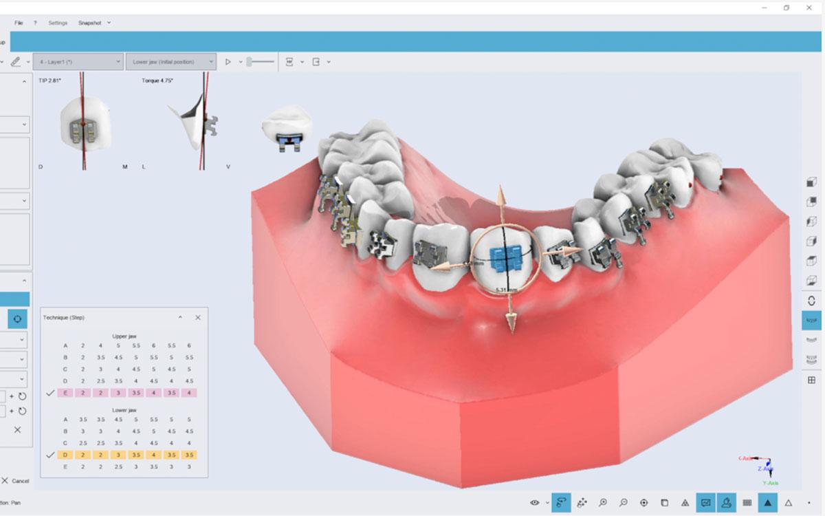 画像:3Dデジタル模型上での治療趣味レーションソフト・模型分析