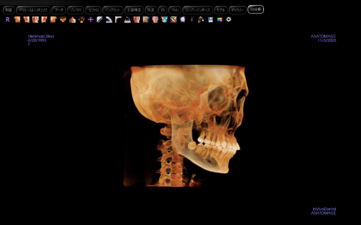 画像:3DーCTデータを用いた3D分析・シュミレーションソフト