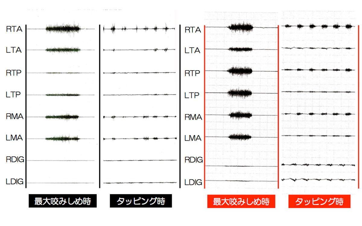 画像:噛む筋肉(咀嚼筋群)の活動状況を調べる筋電図測定装置